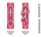 vector varicose vein and normal ... | Shutterstock .eps vector #635434973