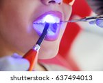 a male dentist is filling the... | Shutterstock . vector #637494013
