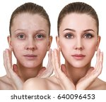 woman before and after... | Shutterstock . vector #640096453