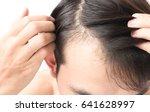young man serious hair loss... | Shutterstock . vector #641628997