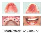 Dental Implants  And Denture ...