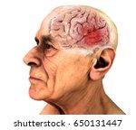 brain  degenerative diseases ... | Shutterstock . vector #650131447