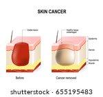 skin cancer treatment.... | Shutterstock . vector #655195483