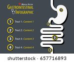 gastrointestinal infographic .... | Shutterstock .eps vector #657716893