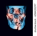 3d computed tomography 3d ct...   Shutterstock . vector #658420297