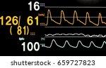 Stock photo blood pressure vital sign ekg monitor 659727823