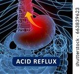 acid reflux  gerd.... | Shutterstock . vector #663839623