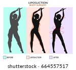 liposuction before and after.... | Shutterstock .eps vector #664557517