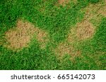 lawn in bad condition and need... | Shutterstock . vector #665142073