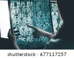 Small photo of alzheimer's disease on MRI