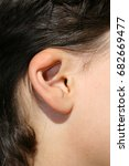 Small photo of Deformed ear. Abnormal development of the auricle. Plastic surgery and cosmetology.