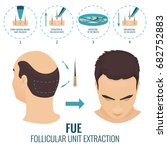 male hair loss treatment with... | Shutterstock . vector #682752883