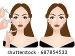 face injection surgery vector... | Shutterstock .eps vector #687854533
