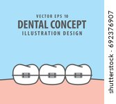 orthodontic teeth illustration... | Shutterstock .eps vector #692376907