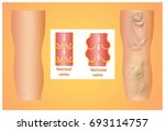 varicose veins on a female... | Shutterstock . vector #693114757