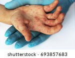 viral diseases. hand infected.... | Shutterstock . vector #693857683