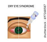 conjunctivitis. redness and... | Shutterstock .eps vector #697268587