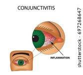 conjunctivitis. redness and...   Shutterstock .eps vector #697268647