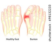 healthy foot and foot with... | Shutterstock .eps vector #698132233