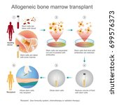 the allogeneic transplant... | Shutterstock .eps vector #699576373