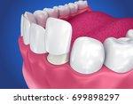 dental veneers  porcelain...   Shutterstock . vector #699898297