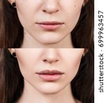 lips of young woman before and... | Shutterstock . vector #699963457