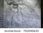 coronary angiography   left... | Shutterstock . vector #702040633
