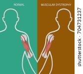 muscular dystrophy vector...   Shutterstock .eps vector #704731237