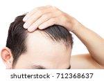 young man serious hair loss... | Shutterstock . vector #712368637