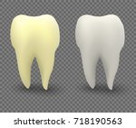 tooth  teeth before and after... | Shutterstock .eps vector #718190563