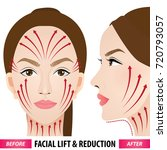 facial lift and reduction...   Shutterstock .eps vector #720793057
