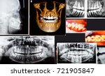 panoramic and 3d dental x ray... | Shutterstock . vector #721905847