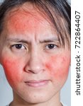 Small photo of Face of a young woman with rash from an allergic reaction to cosmetics, closeup.