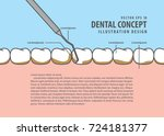 layout scaling teeth...   Shutterstock .eps vector #724181377