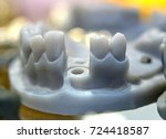 collapsible jaw model wih teeth ... | Shutterstock . vector #724418587