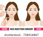 face injection surgery before... | Shutterstock .eps vector #728416867