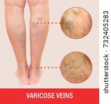 Small photo of Painful varicose veins,,spider veins, varices on a severely affected leg. Ageing, old age disease, aesthetic problem concept.