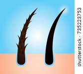 hair care  prevent split ends... | Shutterstock .eps vector #735223753