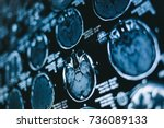 magnetic resonance scan of the... | Shutterstock . vector #736089133