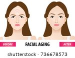 facial aging before and after... | Shutterstock .eps vector #736678573