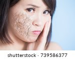 woman with dry skin on the blue ... | Shutterstock . vector #739586377