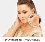 dark spots  freckles... | Shutterstock . vector #740078683