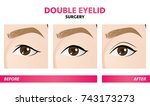 double eyelid surgery before... | Shutterstock .eps vector #743173273