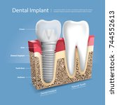 human teeth and dental implant... | Shutterstock .eps vector #744552613