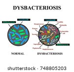 dysbacteriosis of the intestine....   Shutterstock .eps vector #748805203