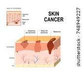 skin cancer  squamous cell... | Shutterstock .eps vector #748949227