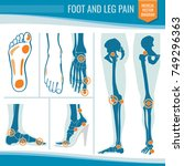 foot and leg pain. arthritis... | Shutterstock .eps vector #749296363