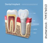 human teeth and dental implant... | Shutterstock .eps vector #749376013