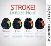 stroke golden hour infographic... | Shutterstock .eps vector #751317937