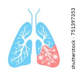 icon of lung disease  pneumonia ... | Shutterstock .eps vector #751397353